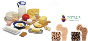 Dieta pentru osteoporoza - un regim alimentar bogat in calciu si vitamina D