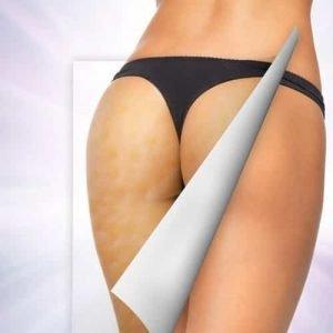Celulita, Cum te ajuta un masaj anticelulitic sa distrugi stratul adipos