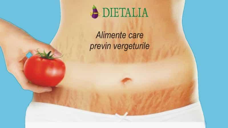 Alimente care previn vergeturile, recomandate de medicii nutritionisti de la Clinica Dietalia