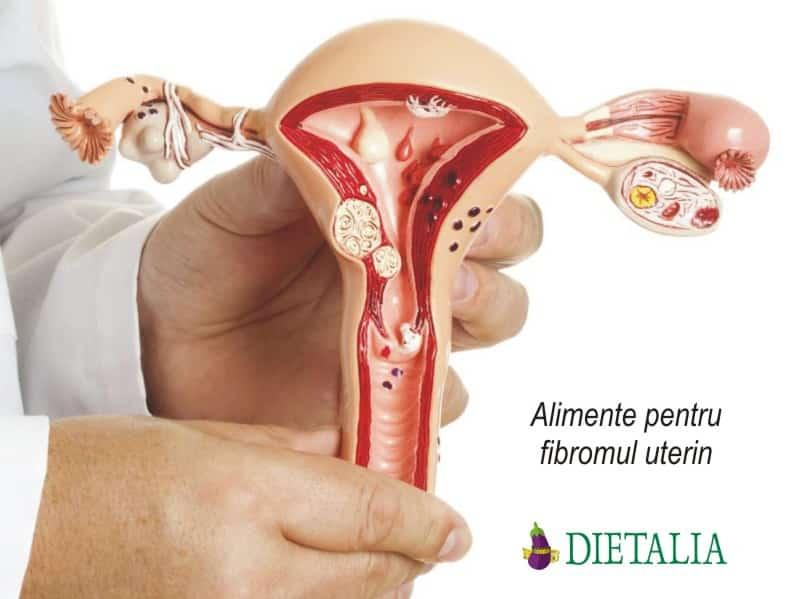 Alimente pentru fibromul uterin, recomandate de medicii nutritionisti de la Clinica Dietalia