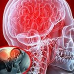 Alimente pentru edemul cerebral