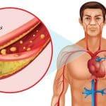 Alimente pentru scaderea colesterolului
